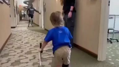 8-time Paralympic International Medalist Blake Leeper inspires 2-yr-old KJ who is trying out his new prosthetic